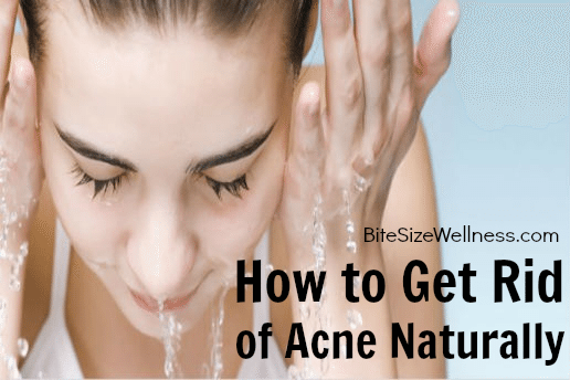 To Get Rid Of Acne Naturally